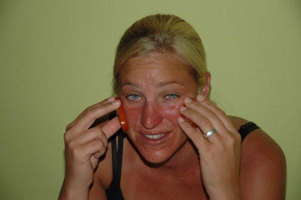 Tomatenkur gegen Sonnenbrand